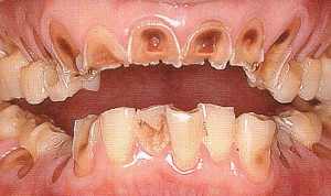 酸性飲料で溶けた歯