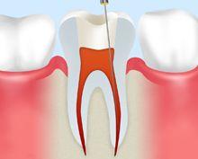 歯髄を抜く